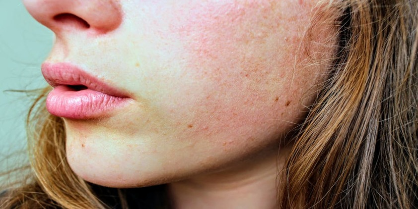 Pexels. close up on lower portion of brunette woman's face